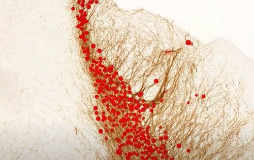 Neuron quantification after AI detection