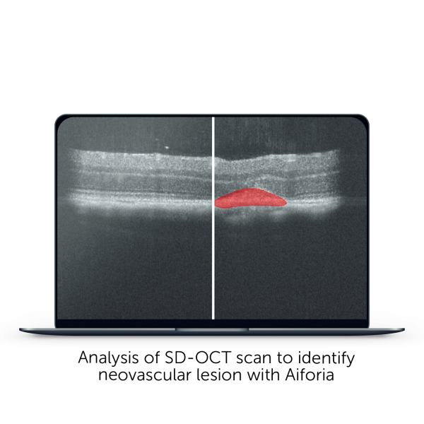 analysis of SD-OCT scan to identify neovascular lesion