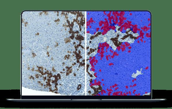 primary sclerosing cholangitis AI analysis