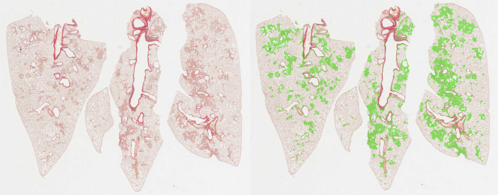 CRL case study: automated image analysis of lung fibrosis with AI
