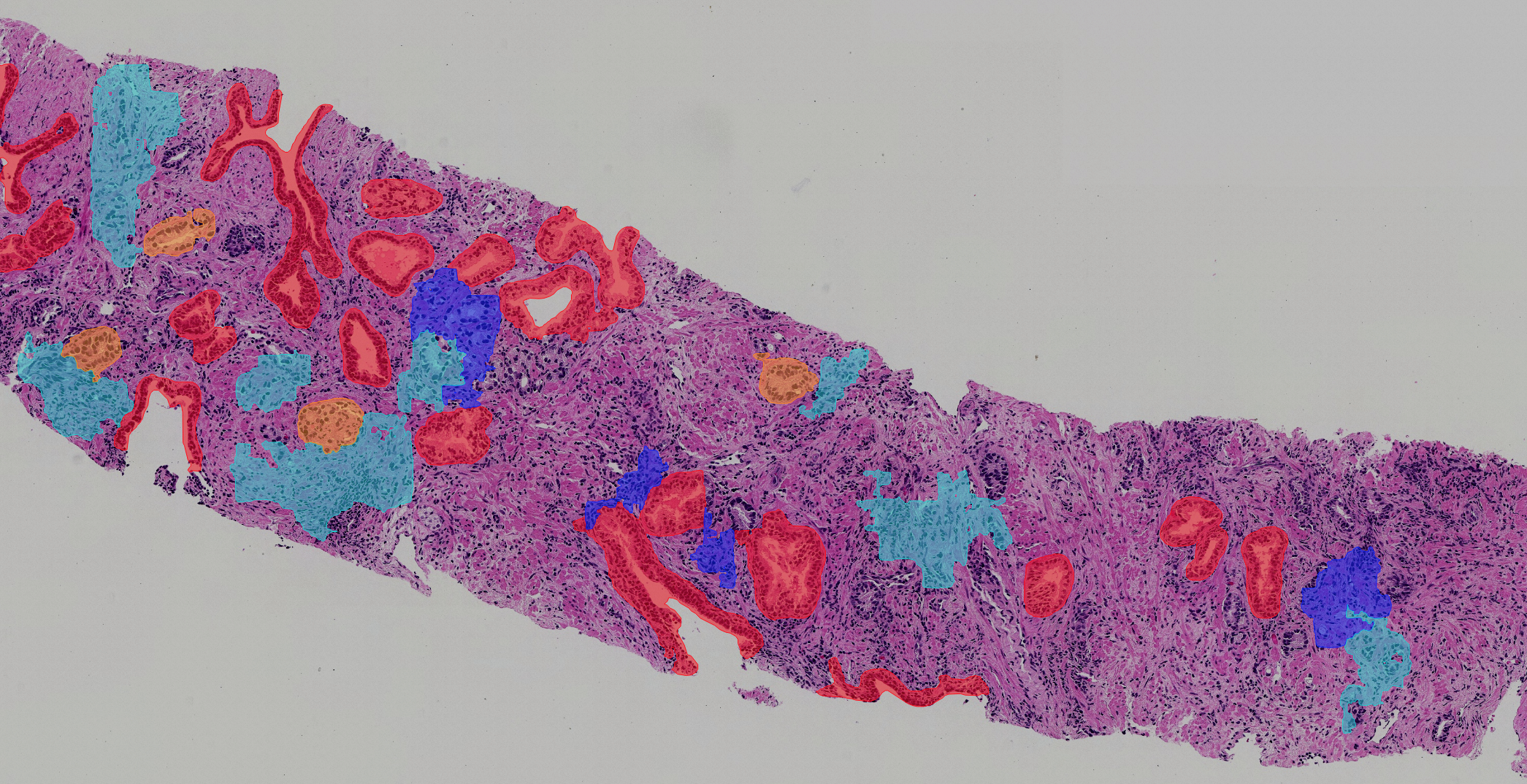 Benefits of AI and digital pathology to the clinical lab: interview with pathologists Dr. Mirtti and Dr. Sandeman