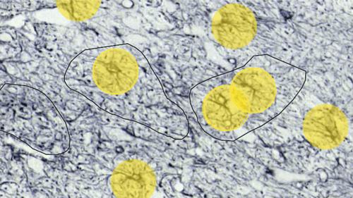 Neuroscientist Joan Compte describes benefits of AI in Parkinson's Disease image analysis