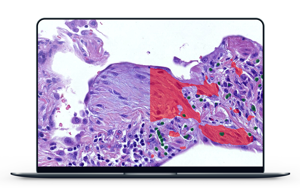 histopathological features of idiopathic pulmonary fibrosis
