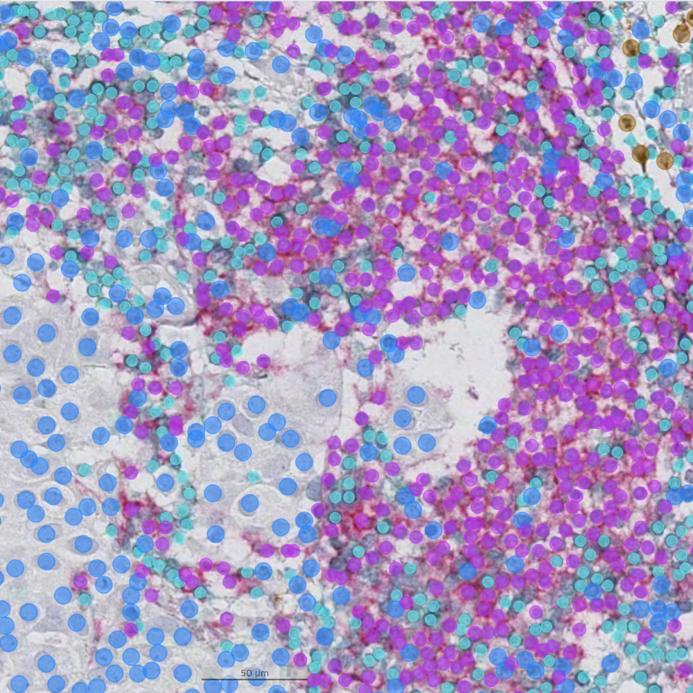 Developing an AI model for multiplex analysis of immune subpopulations in breast cancer
