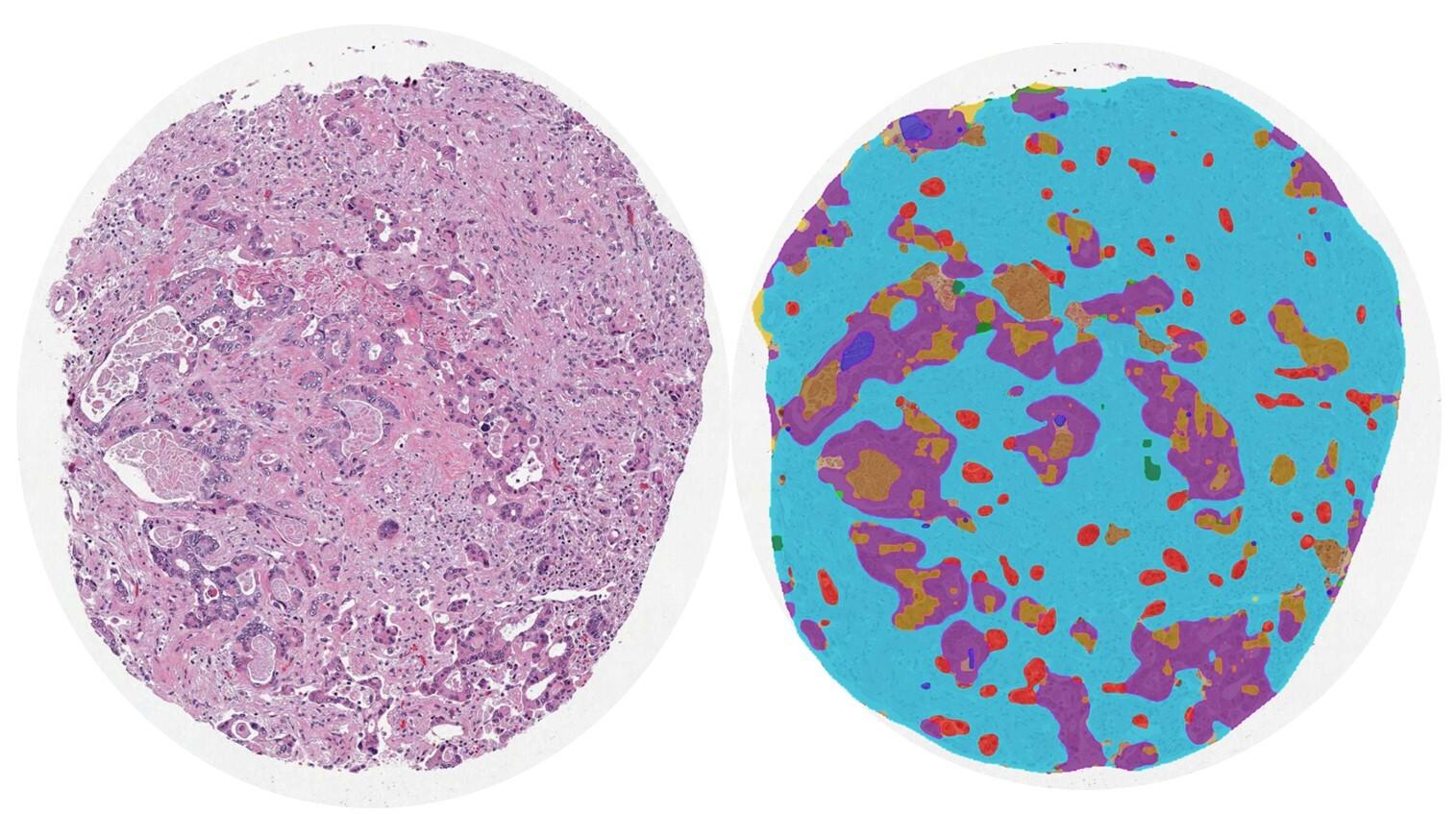Leveraging AI-driven quantitative pathology to identity novel prognostic histologic signatures in colorectal carcinoma