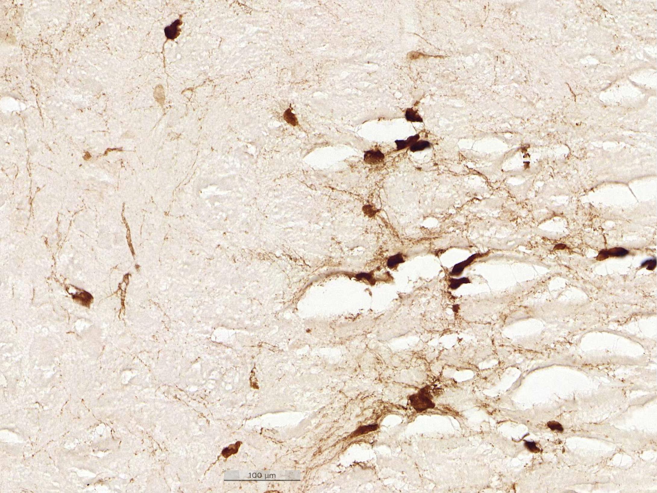 rat-motoneuron-before AI detection