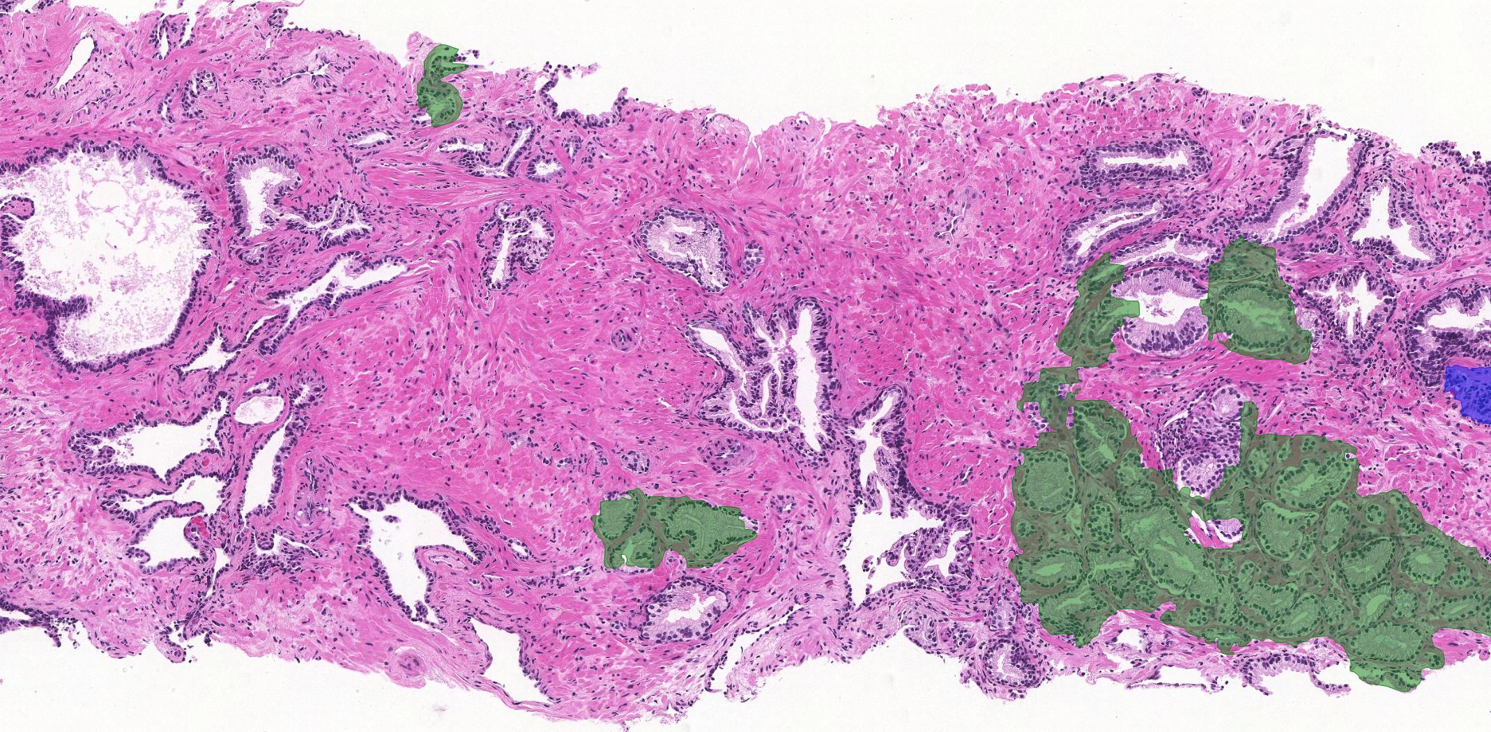 prostate with analysis
